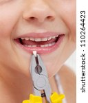 Kid smiling holding a lost tooth with pliers - closeup - stock photo
