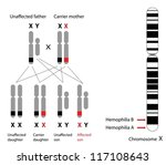 Genetics of hemophilia, A and B - stock vector