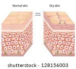 Dry skin - stock photo
