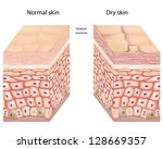 Dry skin - stock vector