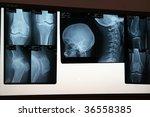 x ray - stock photo