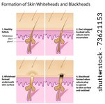 Formation of skin blackhead and whitehead - stock photo