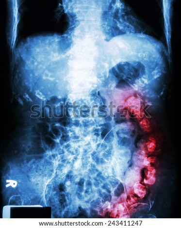 """"""" Constipation """"   ( X-ray abdomen of old man : a lot of feces in large bowel and calcified at rib ) - stock photo"""