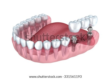 3d lower teeth and dental implant transparent render isolated on white - stock photo