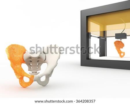 3d printed hip bone - stock photo