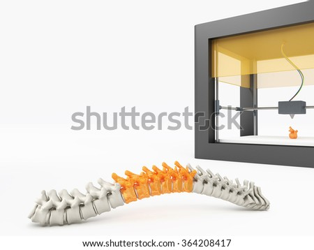 3d printed spine - stock photo