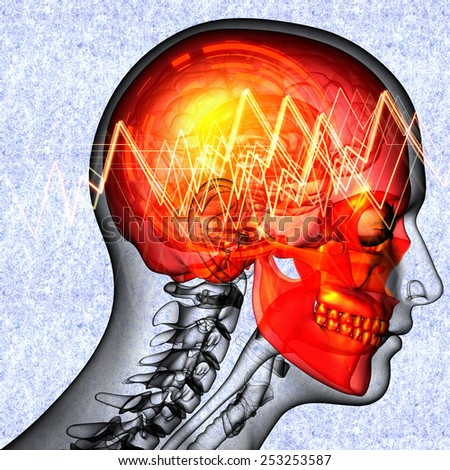 3d render medical illustration of the  head  pain - side view - stock photo
