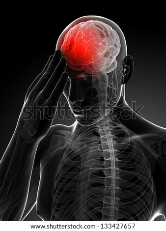 3d rendered conceptual illustration of head pain - stock photo