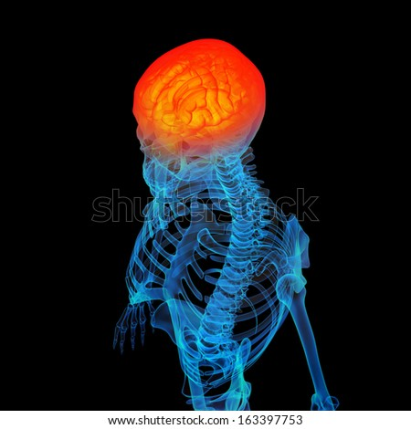 3d rendered human of head pain - stock photo
