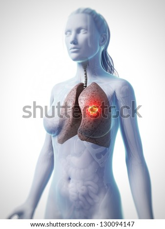 3d rendered illustration of lung cancer - stock photo