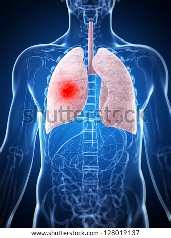 3d rendered illustration of the male lung - cancer - stock photo