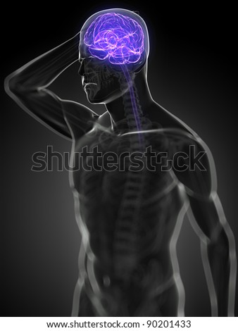 3d rendered, medical illustration - headache - stock photo