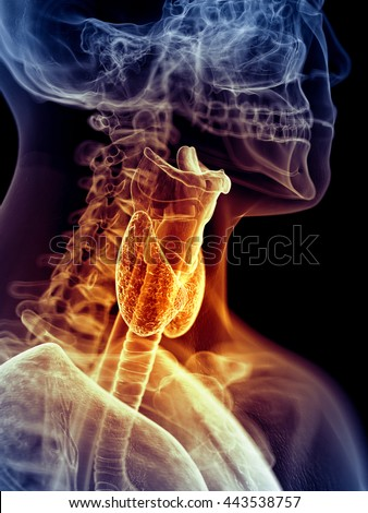 3d rendered, medically accurate illustration of an inflamed throat - stock photo