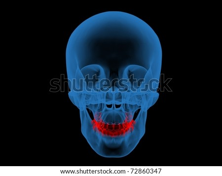 3d X-ray Photo illustration of a skull and teeth in red - stock photo