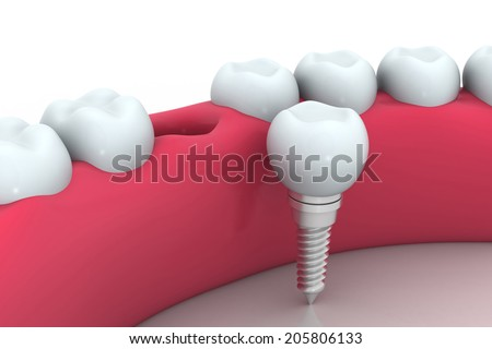Dental implant , human Tooth - stock photo