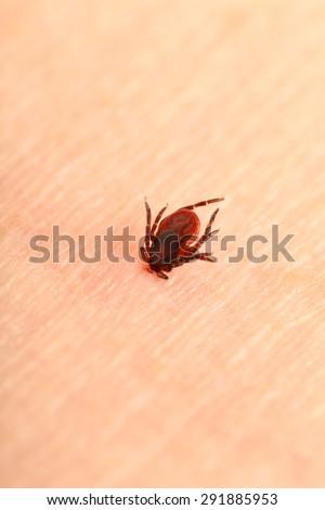 Encephalitis tick  - stock photo