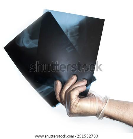 hand holding leg knee x-ray radiography examination   - stock photo