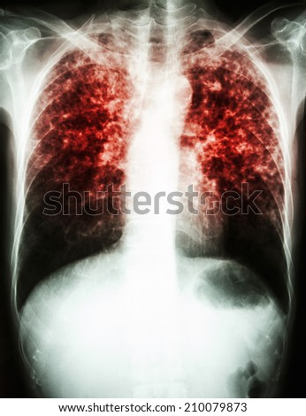 """""""Pulmonary Tuberculosis""""   film chest x-ray show interstitial infiltrate both lung due to Mycobacterium tuberculosis infection  - stock photo"""