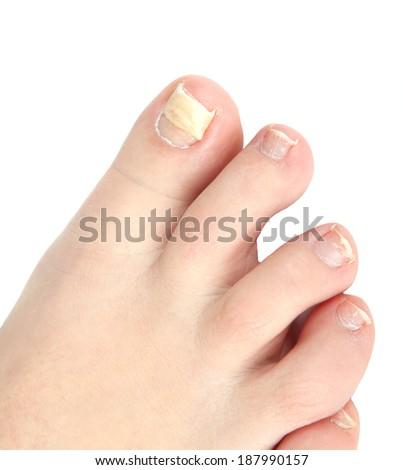 reconstruction nail - stock photo
