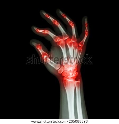 """Rheumatoid Arthritis , Gouty Arthritis""  (X-ray adult's hand with multiple arthritis) - stock photo"