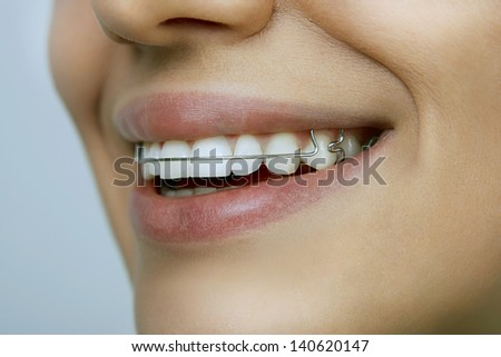 smiling girl with retainer on teeth - stock photo
