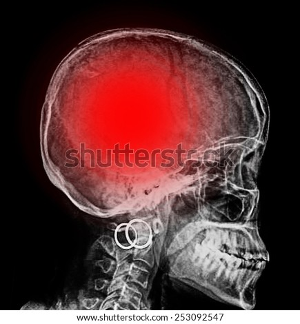 """Stroke"" (cerebrovascular accident). Film x-ray skull lateral with stroke  - stock photo"