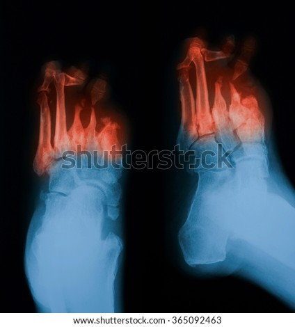 X-ray image of diabetic foot, PA and oblique view. - stock photo