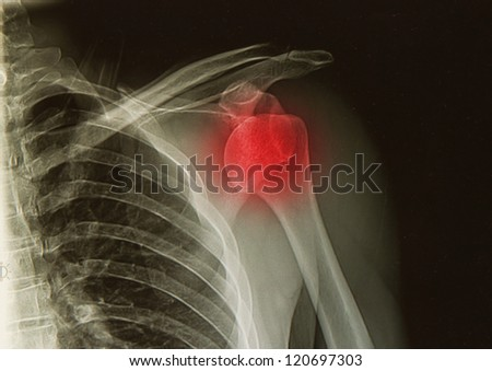 x-rays image of  the painful or injury shoulder joint ,shoulder dislocation - stock photo