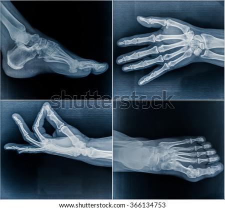 50 year old woman's x-ray scans from hands and feet - stock photo
