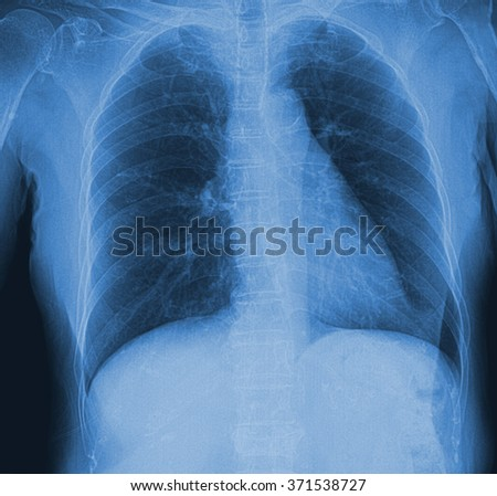 A chest x-ray of old woman for a medical diagnosis. - stock photo