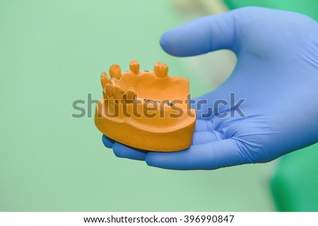 A Close-up View Of Lower  And Dental Implants Isolated On White - stock photo