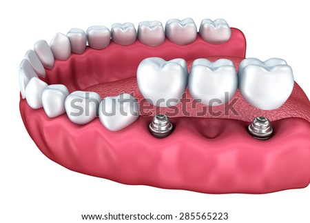 A close-up view of lower teeth and dental implants isolated on white - stock photo