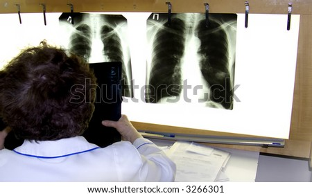 A doctor examines an xray film lung cancer - stock photo