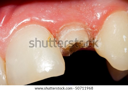 A fractured tooth because of insufficient dental material after buffing - the treatment in my portfolio. - stock photo