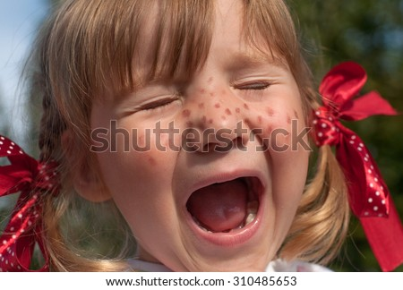 A funny cute outdoor close up portrait of a little girl presenting Pippi Longstocking with her eyes closed and making faces   - stock photo