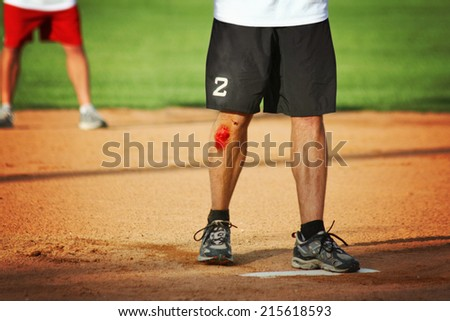 a man's legs on a baseball or softball field with a big scrape - stock photo