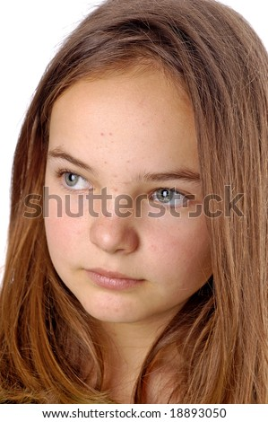 A teenager with pimples on her face - stock photo