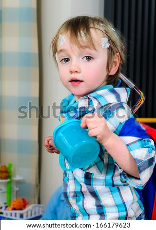 A 2 year old boy with 24hr EEG electrodes attached - stock photo