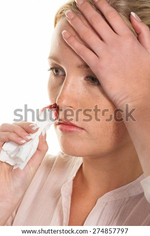 a young woman is bleeding from her nose. stops noses bleed with a handkerchief. - stock photo