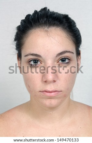 A young woman with acne, unretouched. - stock photo
