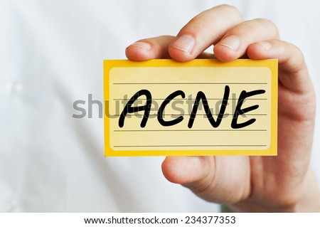 Acne- Doctor showing information - stock photo