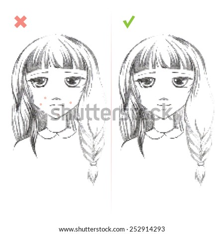 Acne Freehand drawing medical icon .Teenage girl with a pimple on her cheek. Acne vulgaris. Acne of a 14-year-old during puberty. Rubella. Rash on face. On white background - stock photo