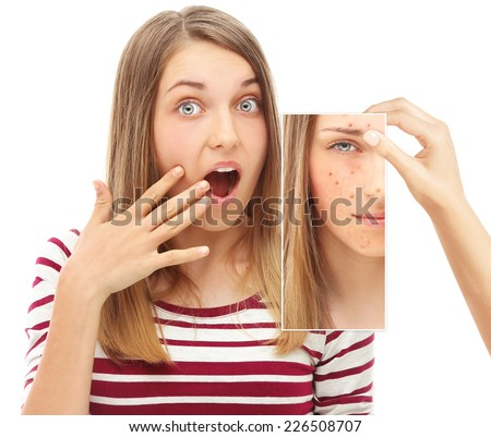 Acne.Frightened teenage girl  looking at a photo of yourself with acne - stock photo