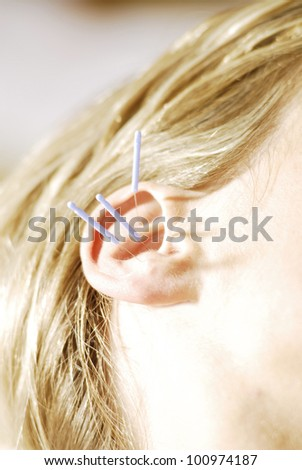 Acupuncture - stock photo