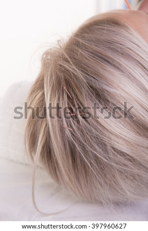 Acupuncture in head - stock photo