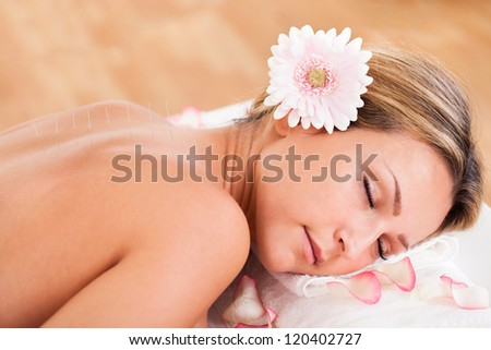 Acupuncture needle inserted by experienced professional only. - stock photo