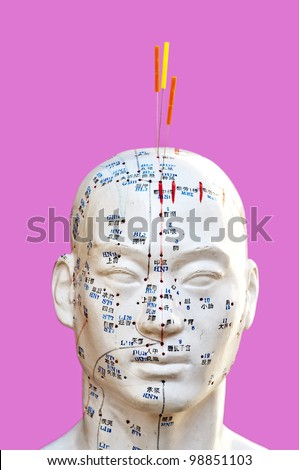 Acupuncture needles on head model - stock photo