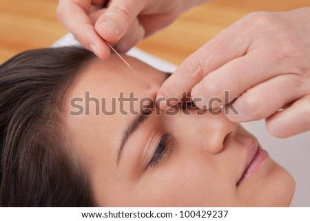 Acupuncture needles on head of a young woman at the spa tcm - stock photo