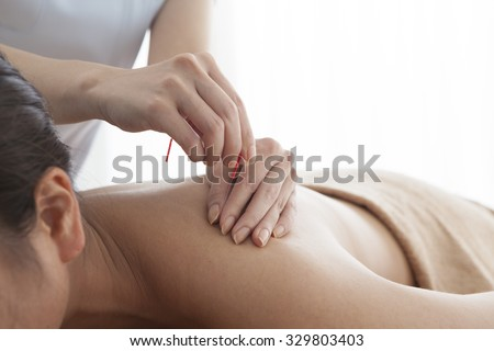Acupuncture specialist doctor inserting needle into patient back for pain treatment - stock photo