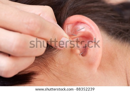 Acupuncture therapist placing needle in ear of patient - stock photo